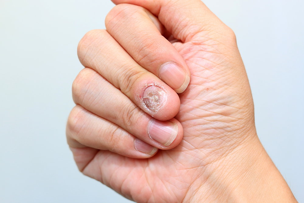 Multiple Sclerosis Therapy Aubagio May Cause Nail Loss, Researchers Report - Multiple Sclerosis News Today