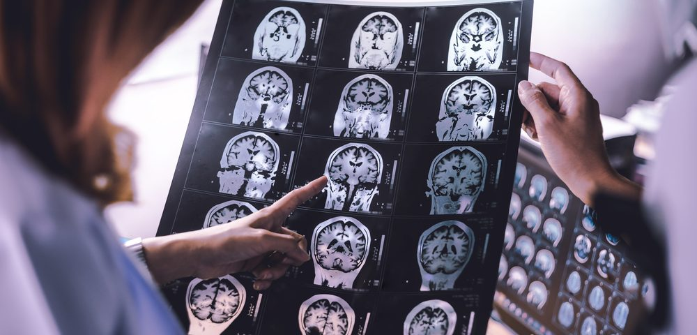 Social Cognition Issues Linked to Damage in Specific Brain Region in RRMS Patients, Study Shows