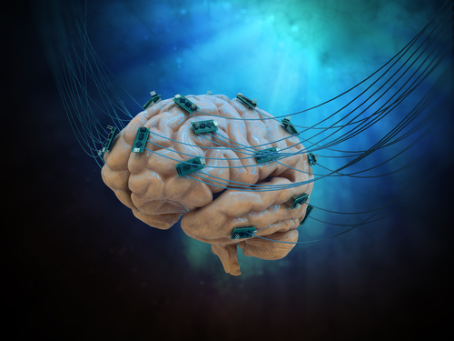 Non-invasive Brain Stimulation Reduces MS-associated Cognitive Fatigue