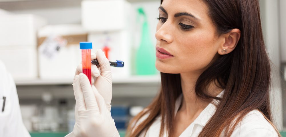 MS Patients' High Osteopontin Protein Levels Make It a Potential Biomarker for the Disorder, Study Reports