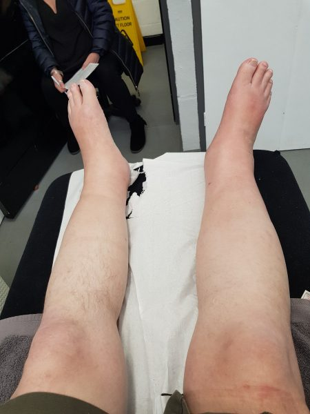 Multiple Sclerosis Edema Complications: Having a Swell Time