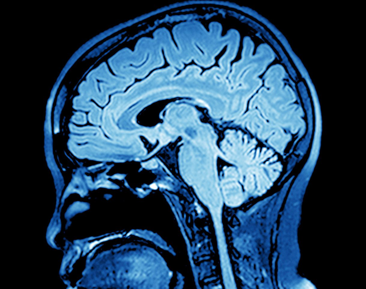 Brain Imaging Studies Seek Signs Of >> Ean2018 Ms Progression Best Monitored With Mris Of Both Brain And