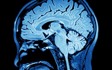 Study Links Degeneration of Deep Gray Matter in Brain to Faster MS Disability