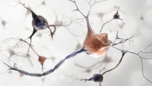 microglia and MS