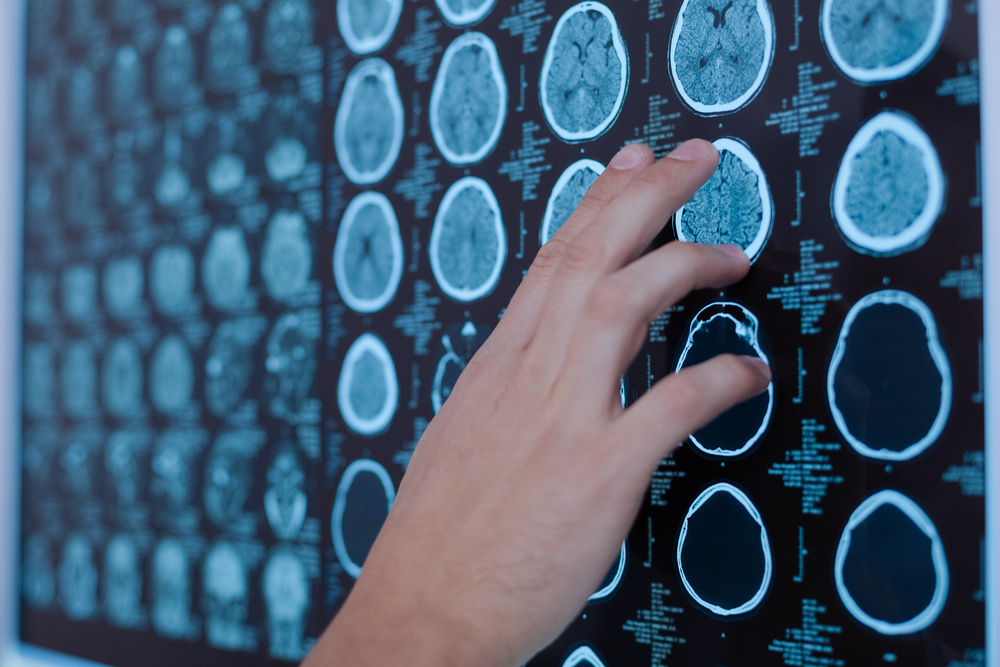 Brain shrinkage and MS