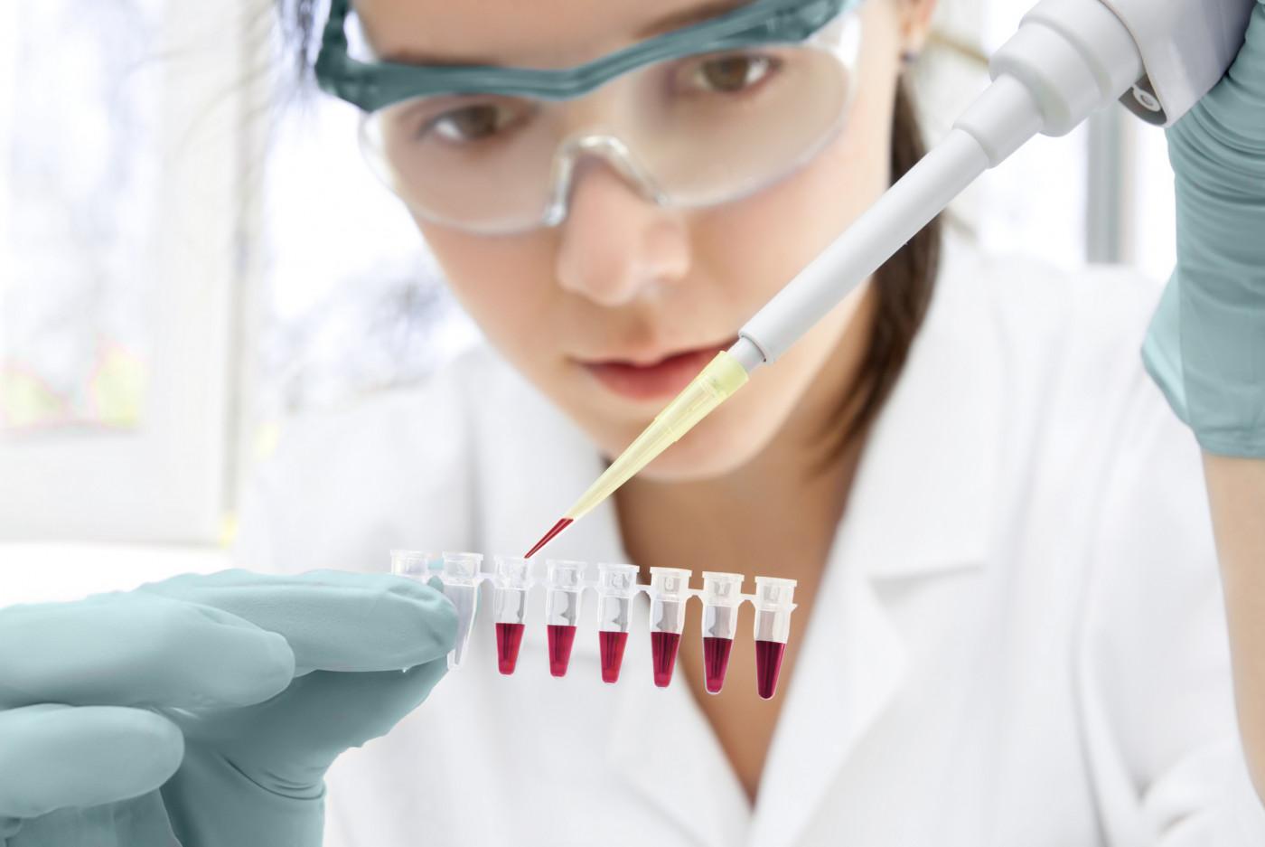 immunoglobulin G (IgG) levels
