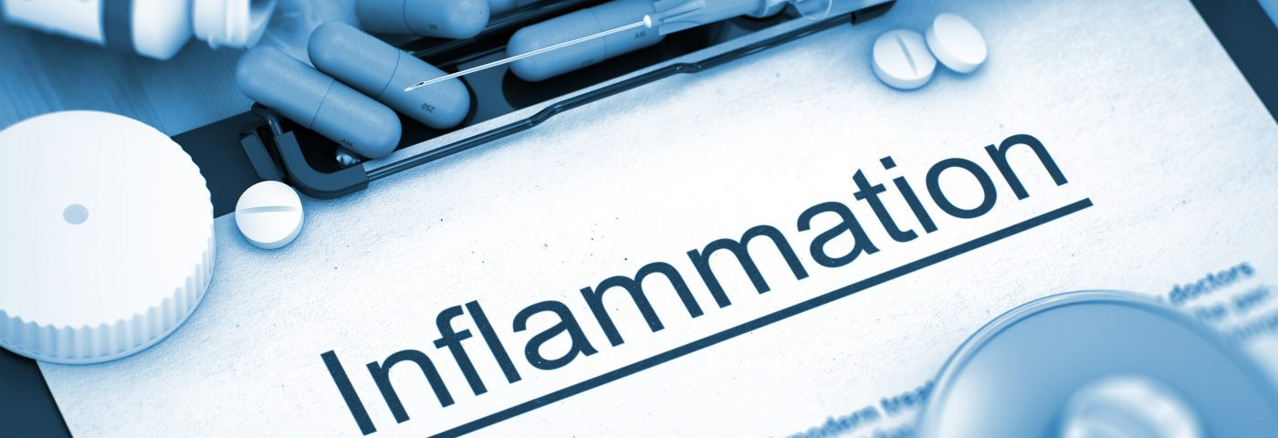 Need to Know: Natural Strategies to Fight MS Inflammation