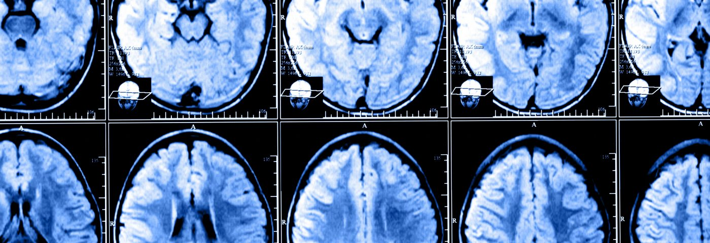 Study Examines Gadolinium Deposits in MS Patients' Brains, But Still Can't Determine Relationship with Disease Severity
