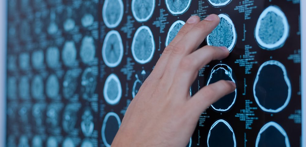 Gray Matter Lesions Affect Cognition in Japanese MS Patients as Well, Study Says
