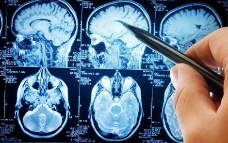 Most RIS Patients Likely to Progress to MS Within 10 Years, Study Says