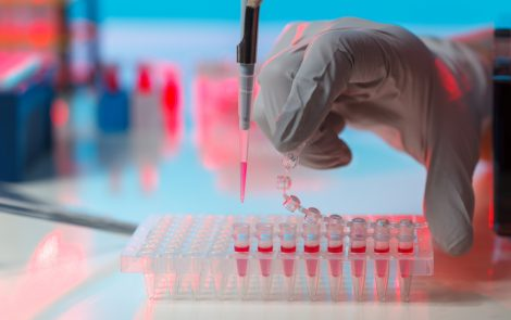 SERPINA3 Nerve Injury-induced Protein May Be Biomarker of PPMS