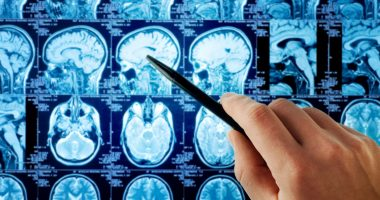 gray matter | Multiple Sclerosis News Today | MRI scans of the brain