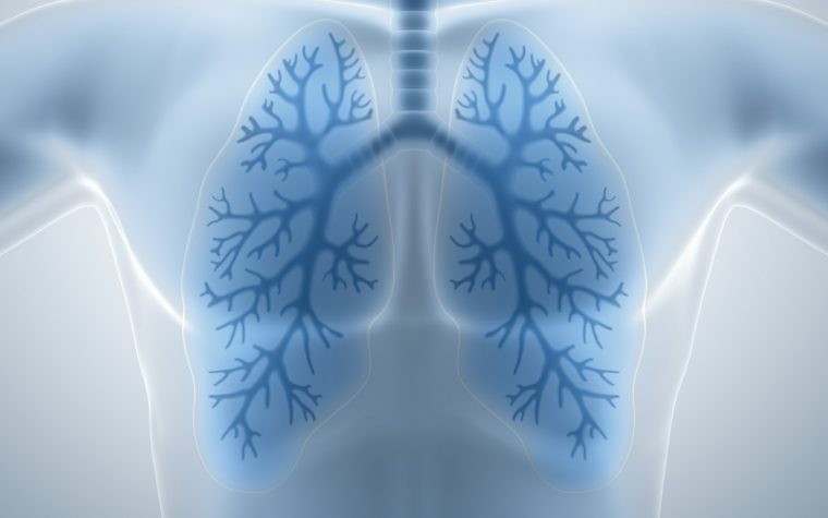 air pollution and MS