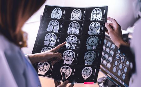 Brain Changes in Relapsing MS Found to Follow Pattern