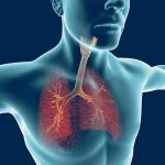 MS and breathing muscles/Multiple Sclerosis News Today/the human airways