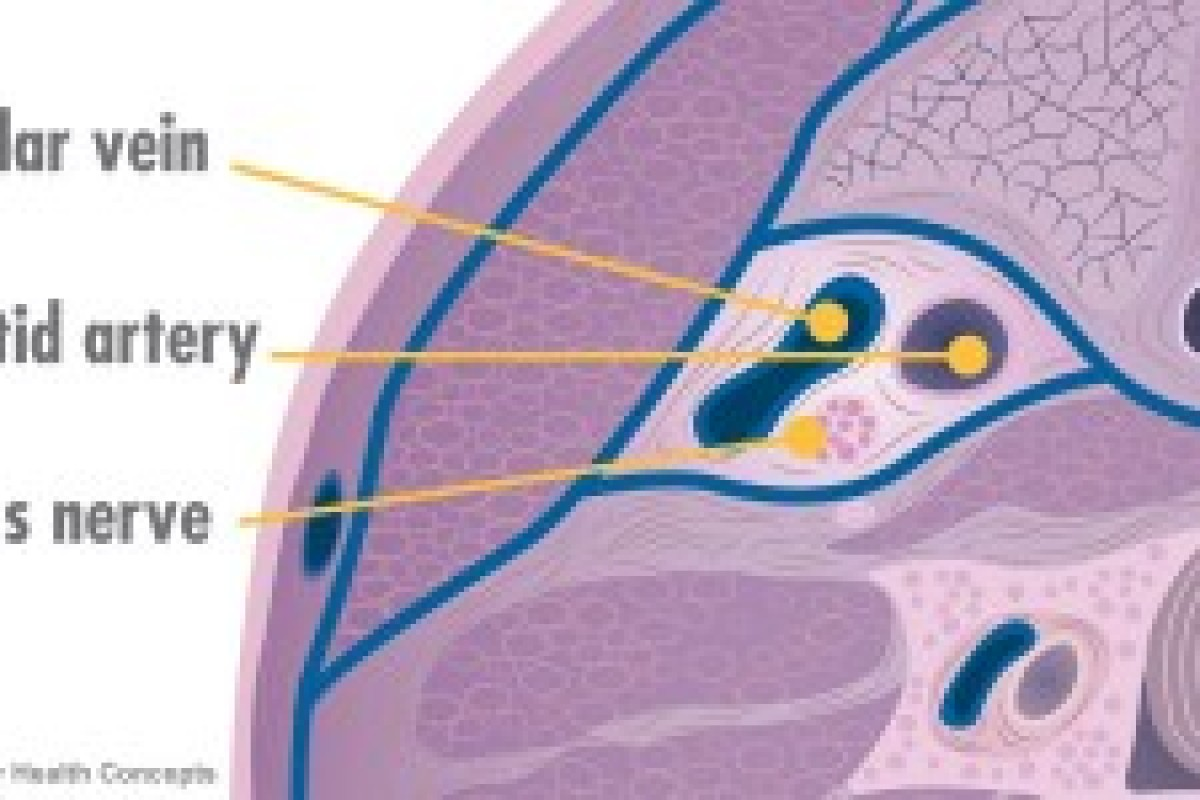 a report on multiple sclerosis a chronic disease Multiple sclerosis is a chronic illness of the central nervous  due to the nature of the disease,  about 80 percent of people with ms report having fatigue.
